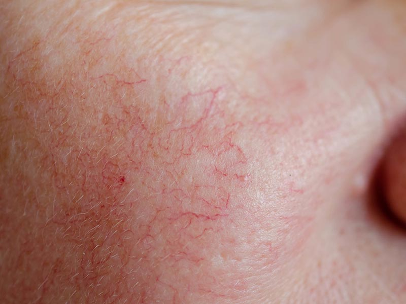 Rosacea Skin Treatment | Everything Skin Manchester