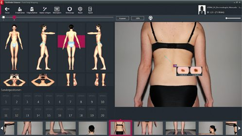Mole Mapping FotoFinder | Everything Skin Manchester