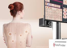 Mole Mapping Services | Everything Skin Manchester