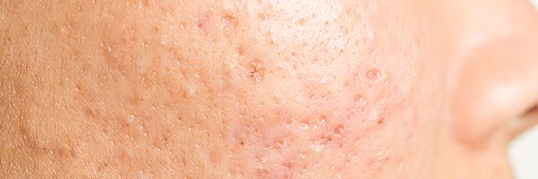 Acne Scarring | Everything Skin Manchester