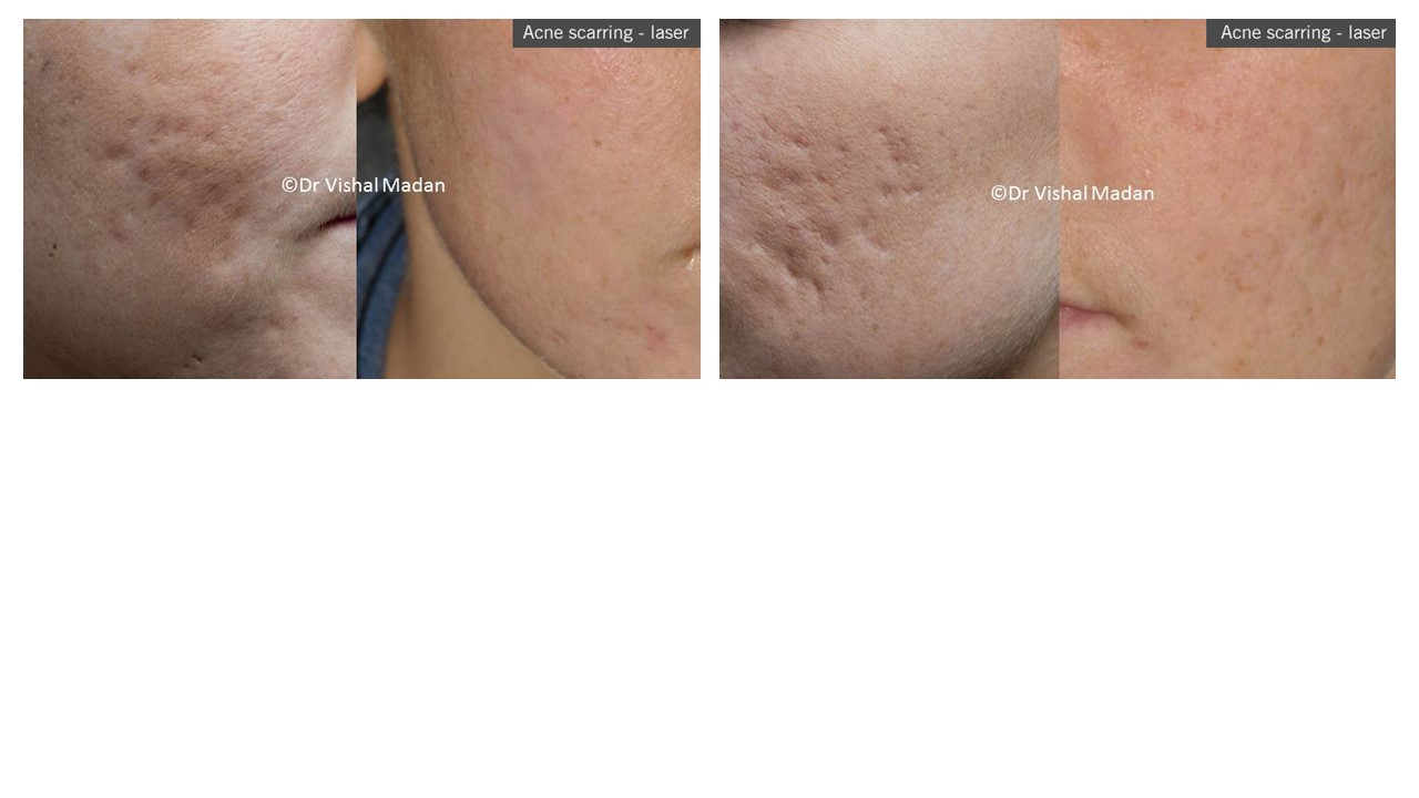 Laser Treatment for Acne Scarring | Everything Skin Manchester