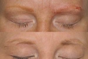 Alopecia Treatment | Everything Skin Manchester