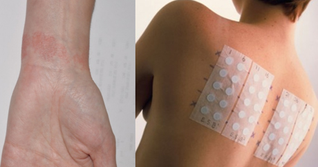 Skin Patch Testing | Everything Skin Manchester