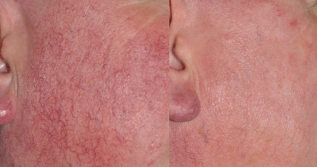 Rosacea Treatments | Everything Skin Manchester