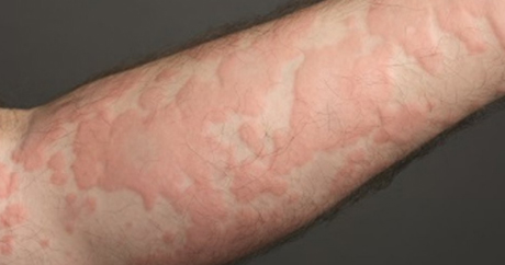 Urticaria Treatment   Everything Skin Manchester
