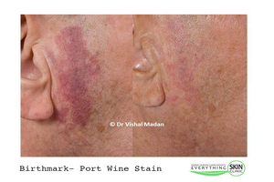 Birthmark Skin Treatment | Everything Skin Manchester