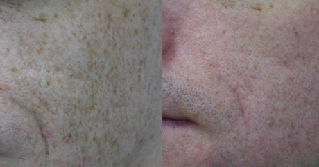 Freckles Treatment | Everything Skin Manchester